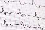 Dispositif médical, médicament et sécurité du patient