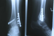 Radiographie d'une cheville cassée