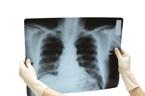 Mise en examen et décès liés à la légionellose